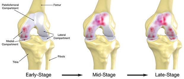 Guarire l'articolazione del ginocchio